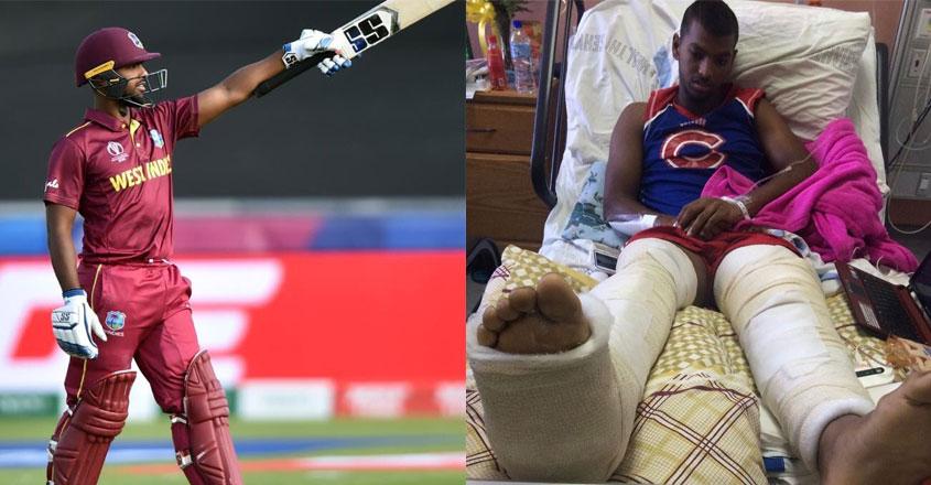 nicholas pooran leg injury